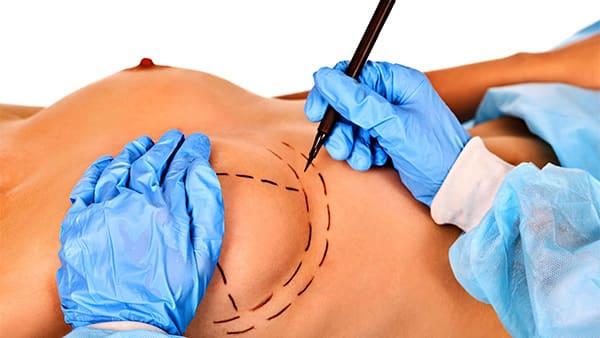 asymetrie mammaire solution asymetrie mammaire cancer docteur hocine bouabid chirurgien esthetique paris 5 chirurgien plasticien paris 5