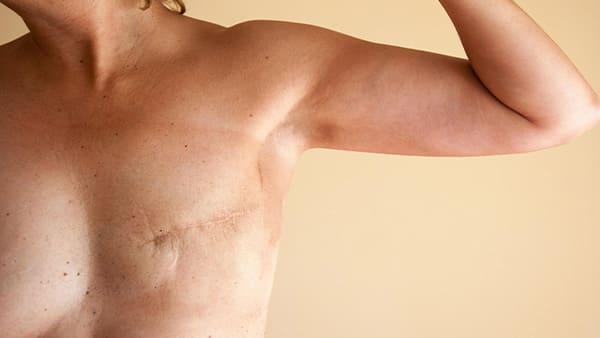 reconstruction mammaire apres cancer du sein docteur hocine bouabid chirurgien esthetique paris 5 chirurgien plasticien paris 5